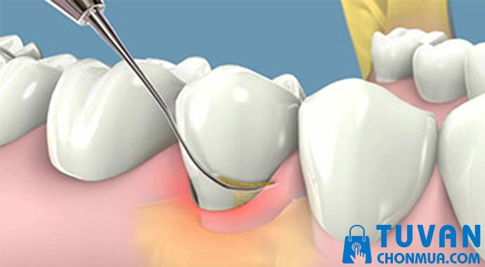 lưu ý khi sử dụng mấy lấy cao vôi răng tại nhà