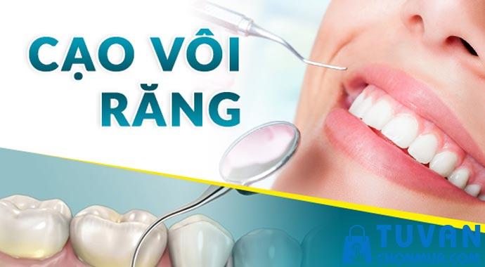 Tại sao nên lấy cao răng thường xuyên?
