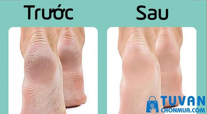 Công dụng của máy chà gót chân